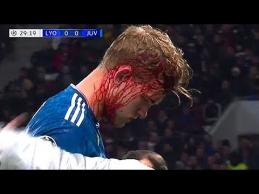 Kraupios traumos futbole
